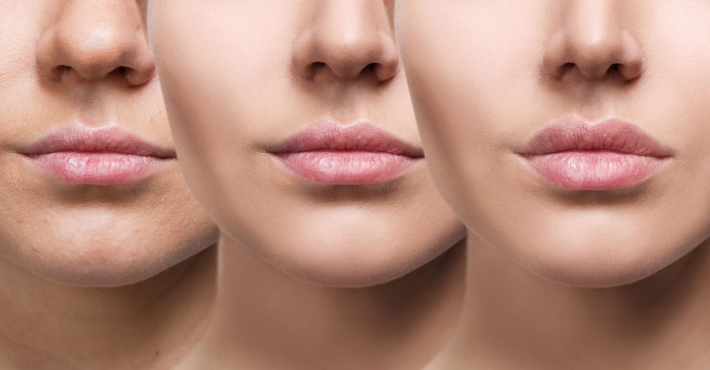 aumento de labios en df