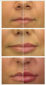 aumento de labios en CDMX